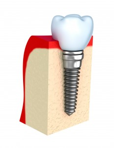 Ocala, FL implant dentistry